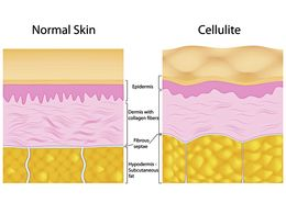 normalna koža i celulit
