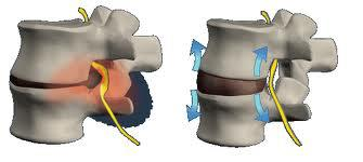 spinalni diskovi