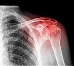 ozljeda ramena